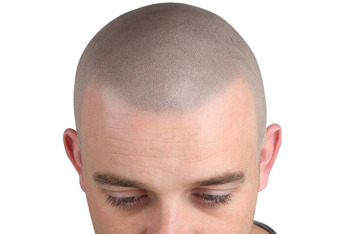 scalp micropigmentation by microblading academy usa