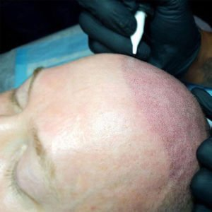 Online Scalp Micropigmentation Training