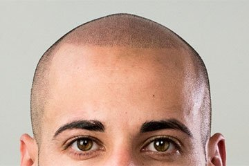 Scalp treated with Scalp Micropigmentation technique