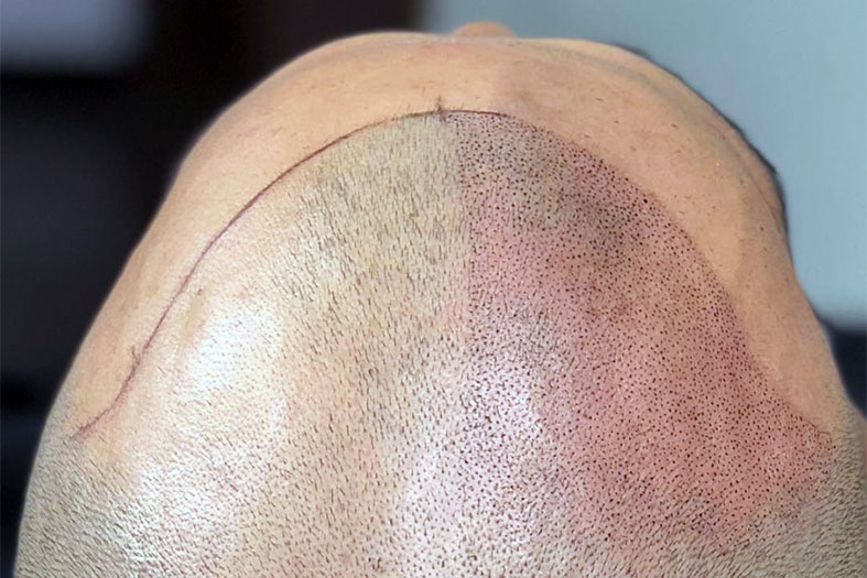 micropigmentation pain and reaction